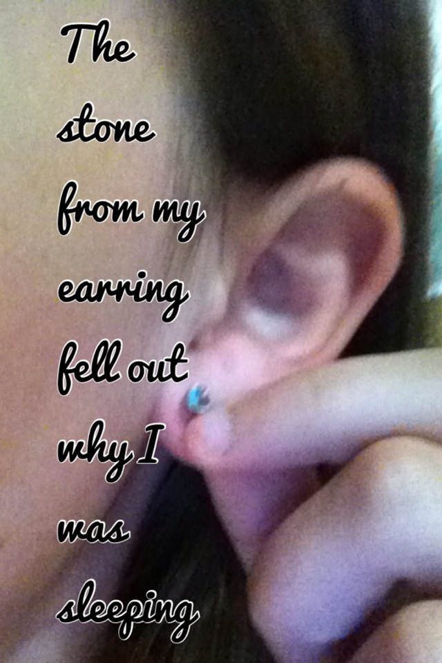 The stone from my earring fell out why I was sleeping