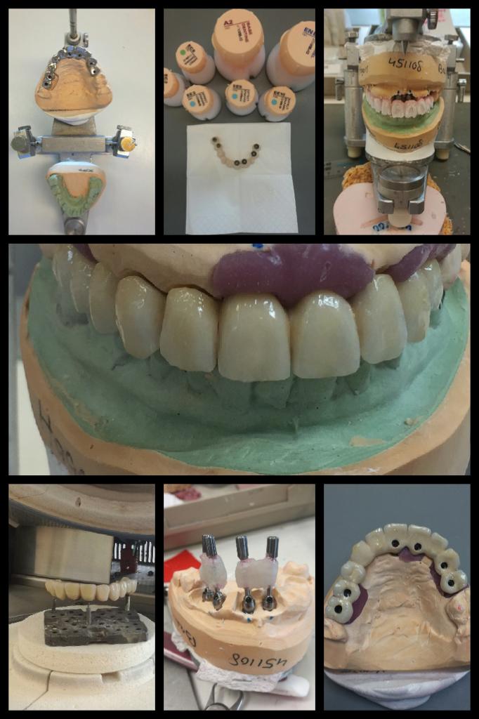 Vandaag is er weer een mooi implantaat werkstuk vervaardigd door onze kroon- en brugwerk afdeling. #kunstwerk #piccollage